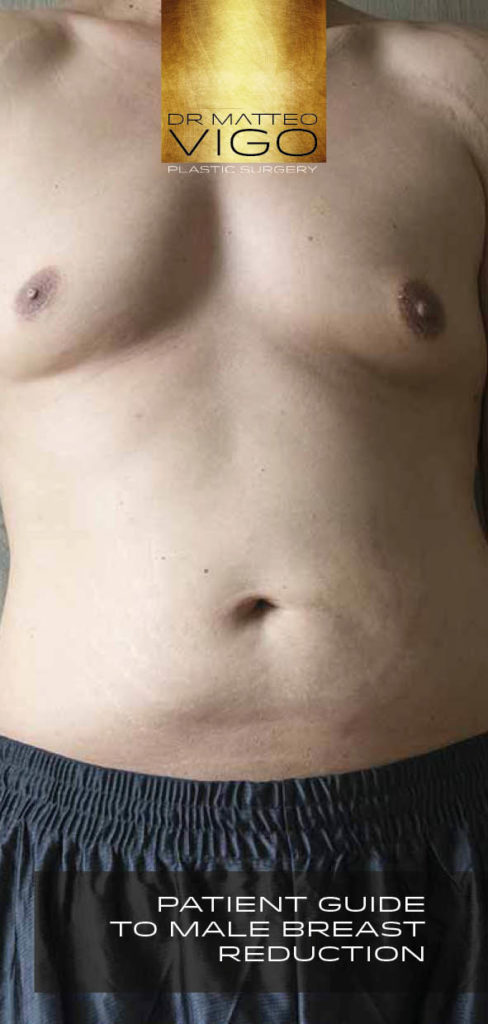 Patient Guide To Male Breast Reduction