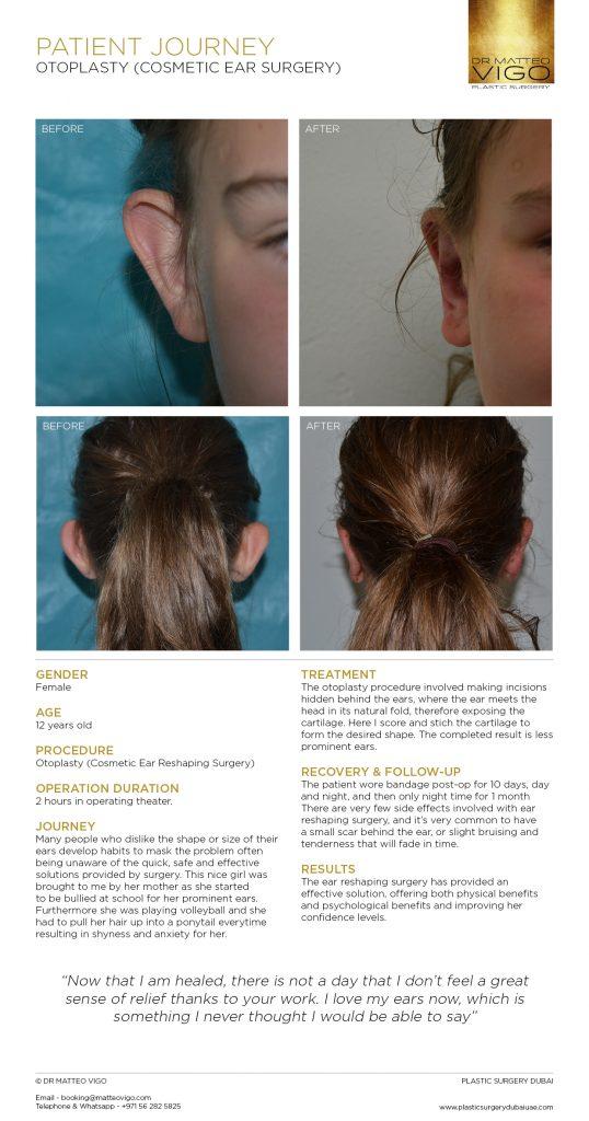 OTOPLASTY (COSMETIC EAR SURGERY)