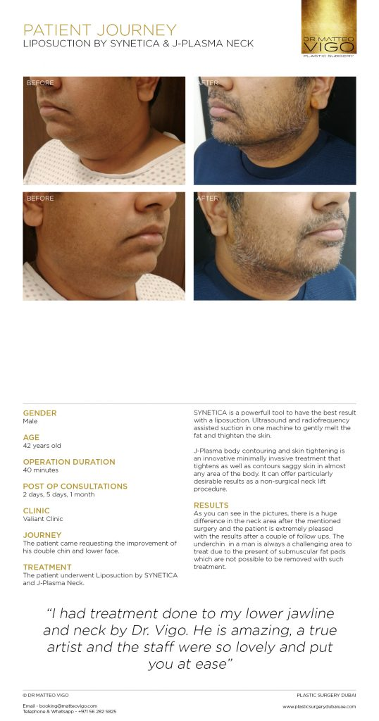 LIPOSUCTION BY SYNETICA & J-PLASMA NECK