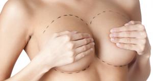 Breast Augmentation Dubai