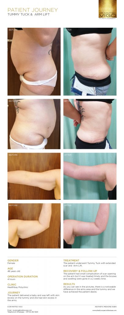TUMMY TUCK &  ARM LIFT