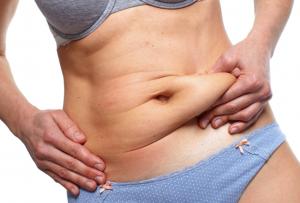 Abdominoplasty Dubai
